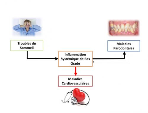 Un lien entre troubles respiratoires du sommeil et maladie parodontale
