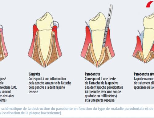 Maladies parodontales et AVC
