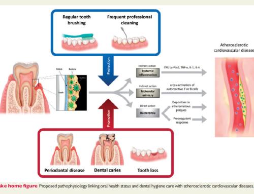 L'amélioration des soins d'hygiène buccale atténue le risque cardiovasculaire