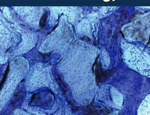 Maladies parodontales et cardiovasculaires: rapport de consensus