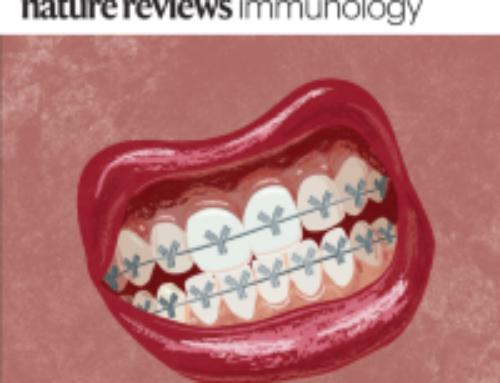 Revue sur le lien entre maladie parodontale et maladies inflammatoires